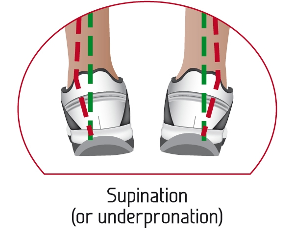 Supination (or underpronation)